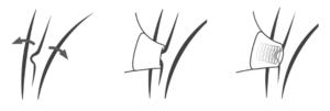 Illustration av hur en klitorisstimulator fungerar